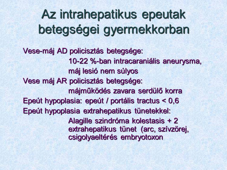 Az intrahepatikus epeutak betegségei gyermekkorban Vese-máj AD policisztás betegsége: 10-22 %-ban intracaraniális aneurysma, máj lesió nem súlyos Vese
