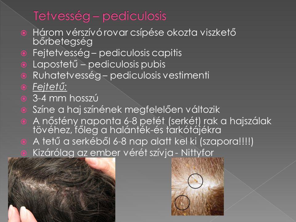  Három vérszívó rovar csípése okozta viszkető bőrbetegség  Fejtetvesség – pediculosis capitis  Lapostetű – pediculosis pubis  Ruhatetvesség – pedi