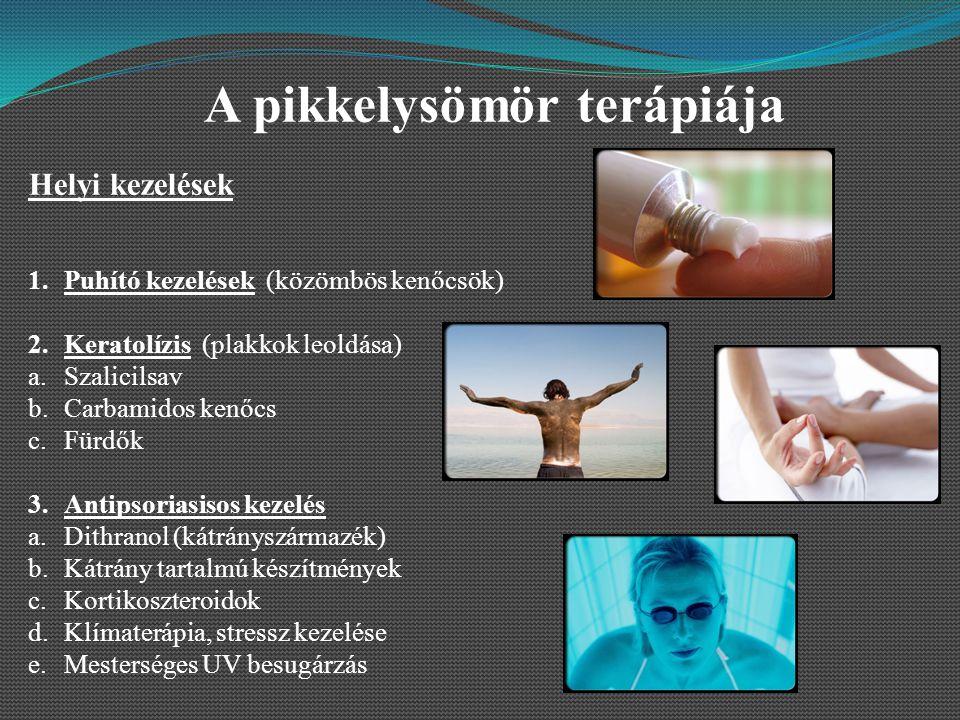 A pikkelysömör terápiája Helyi kezelések 1.Puhító kezelések (közömbös kenőcsök) 2.Keratolízis (plakkok leoldása) a.Szalicilsav b.Carbamidos kenőcs c.Fürdők 3.Antipsoriasisos kezelés a.Dithranol (kátrányszármazék) b.Kátrány tartalmú készítmények c.Kortikoszteroidok d.Klímaterápia, stressz kezelése e.Mesterséges UV besugárzás