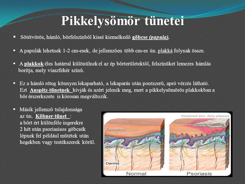 Pikkelysömör tünetei  Sötétvörös, hámló, bőrfelszínből kissé kiemelkedő göbcse (papula).  A papulák lehetnek 1-2 cm-esek, de jellemzően több cm-es ú