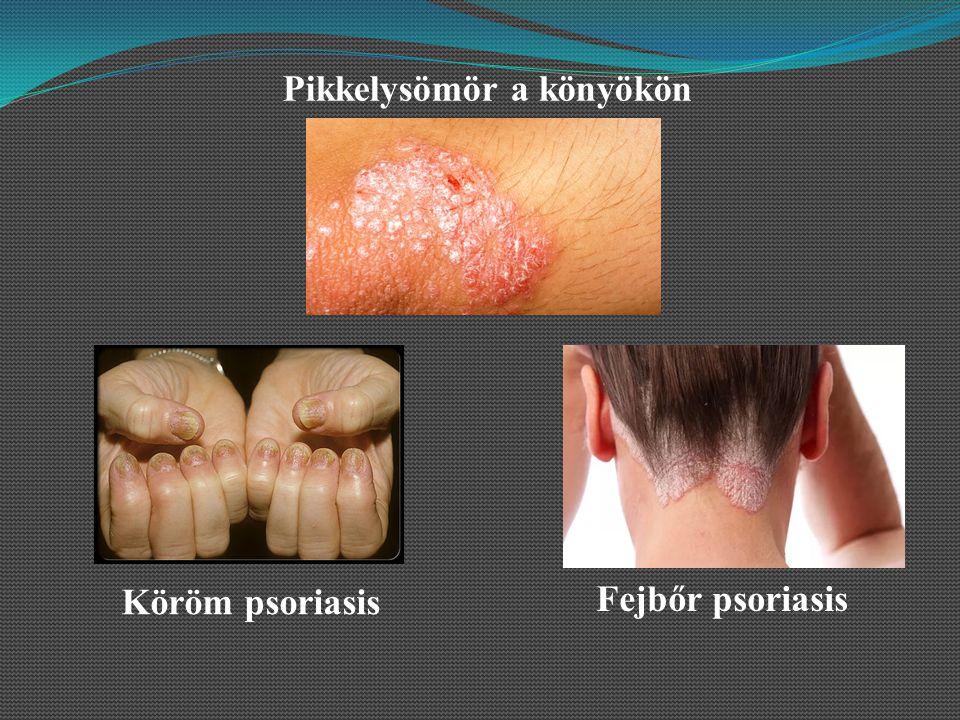 Fejbőr psoriasis Köröm psoriasis Pikkelysömör a könyökön