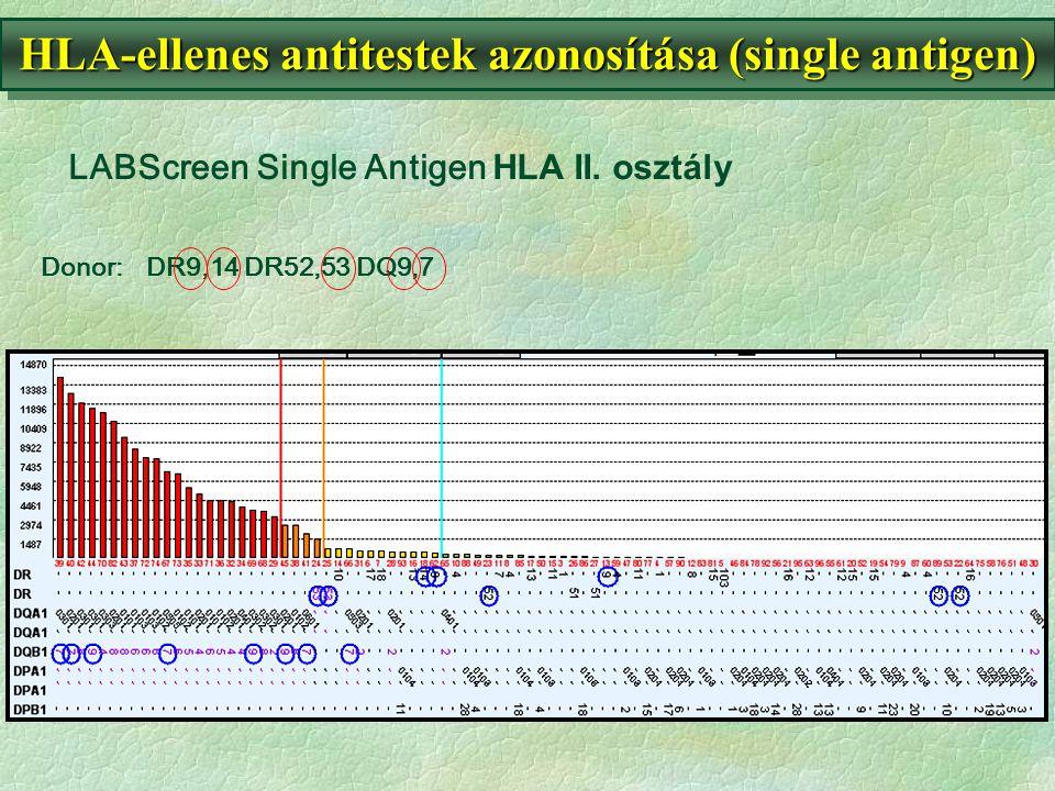 Donor:DR9,14 DR52,53 DQ9,7 HLA-ellenes antitestek azonosítása (single antigen) LABScreen Single Antigen HLA II. osztály