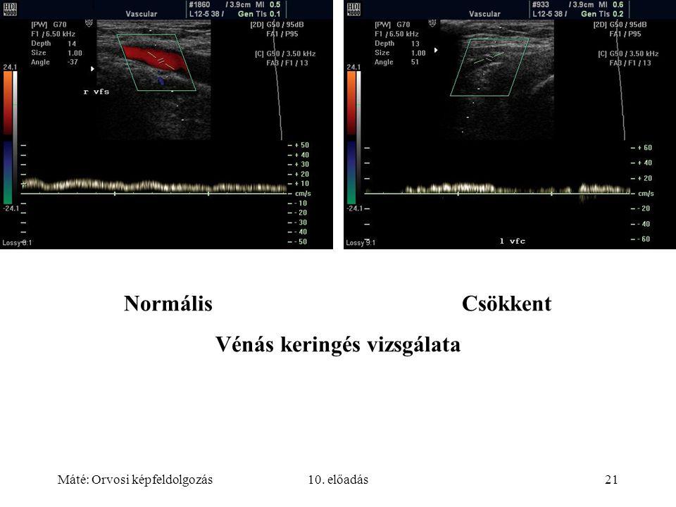 Máté: Orvosi képfeldolgozás10. előadás21 NormálisCsökkent Vénás keringés vizsgálata