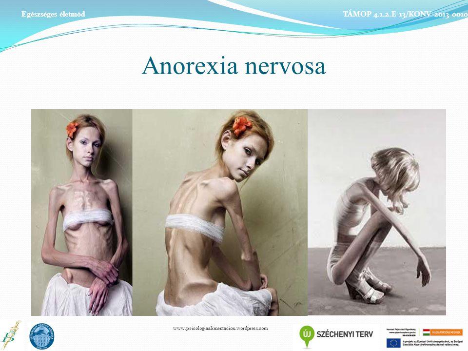 Anorexia nervosa Egészséges életmód TÁMOP 4.1.2.E-13/KONV-2013-0010 www.psicologiaalimentacion.wordpress.com