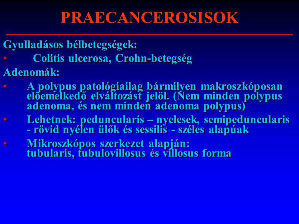 PRAECANCEROSISOK Gyulladásos bélbetegségek: Colitis ulcerosa, Crohn-betegség Adenomák: A polypus patológiailag bármilyen makroszkóposan elõemelkedő el