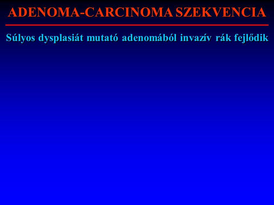 Súlyos dysplasiát mutató adenomából invazív rák fejlődik ADENOMA-CARCINOMA SZEKVENCIA
