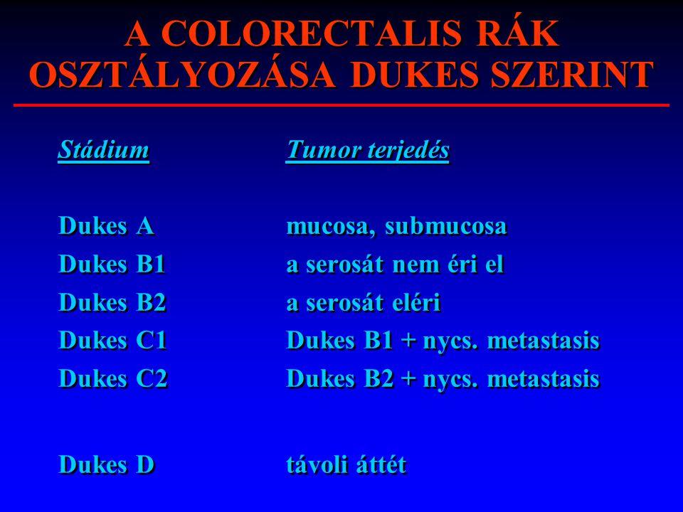 A COLORECTALIS RÁK OSZTÁLYOZÁSA DUKES SZERINT StádiumTumor terjedés Dukes Amucosa, submucosa Dukes B1a serosát nem éri el Dukes B2a serosát eléri Duke