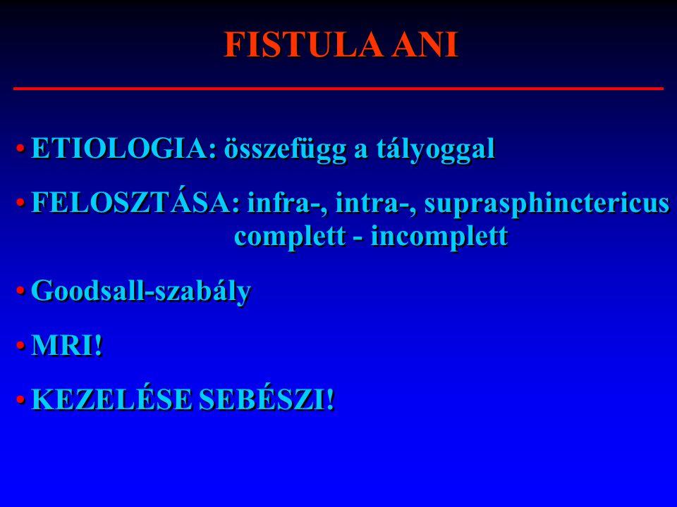 ETIOLOGIA: összefügg a tályoggal FELOSZTÁSA: infra-, intra-, suprasphinctericus complett - incomplett Goodsall-szabály MRI! KEZELÉSE SEBÉSZI! ETIOLOGI