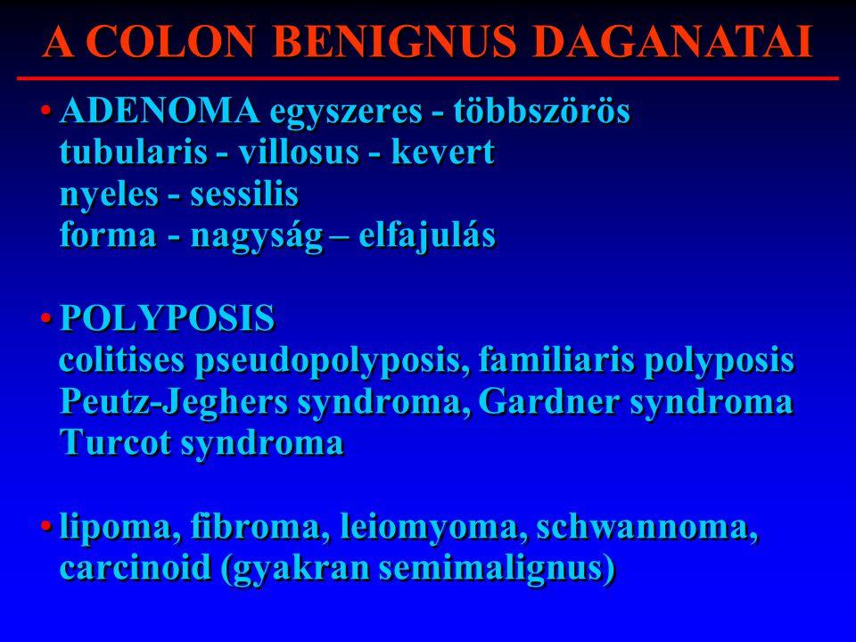 ADENOMA egyszeres - többszörös tubularis - villosus - kevert nyeles - sessilis forma - nagyság – elfajulás POLYPOSIS colitises pseudopolyposis, famili