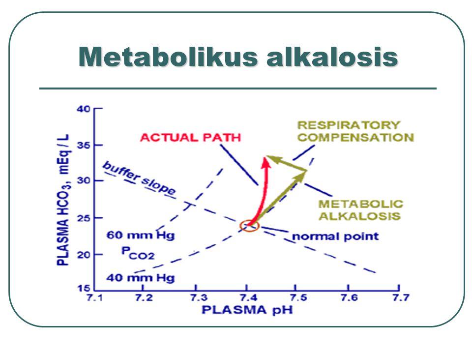 Metabolikus alkalosis