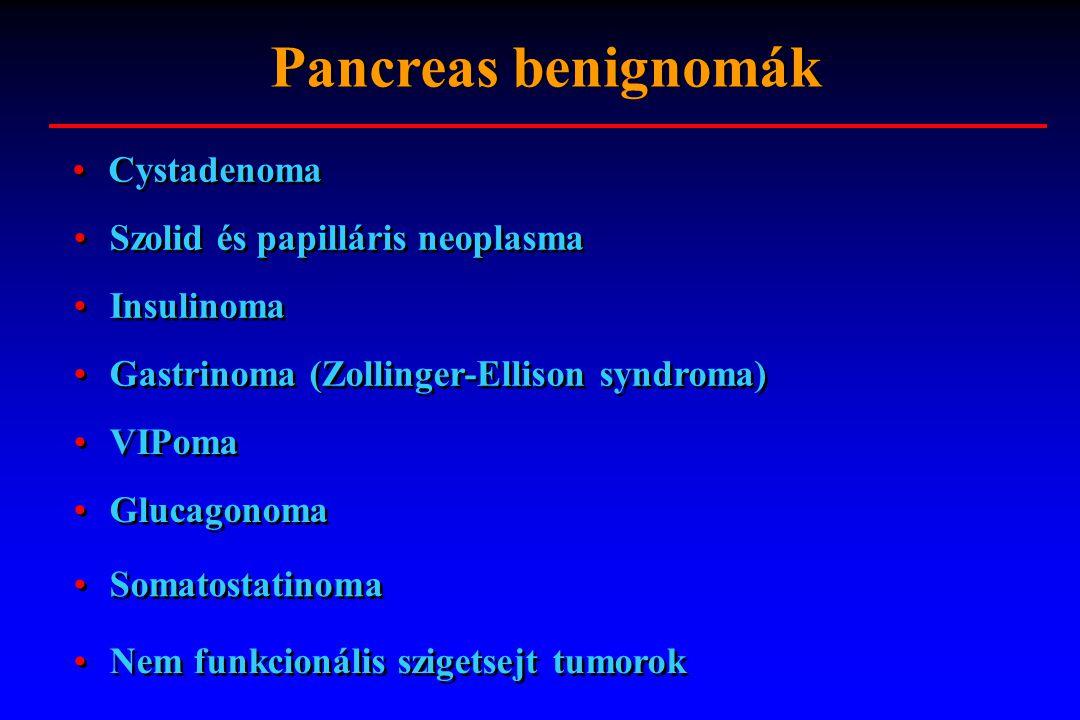 Cystadenoma Szolid és papilláris neoplasma Insulinoma Gastrinoma (Zollinger-Ellison syndroma) Pancreas benignomák VIPoma Glucagonoma Somatostatinoma N