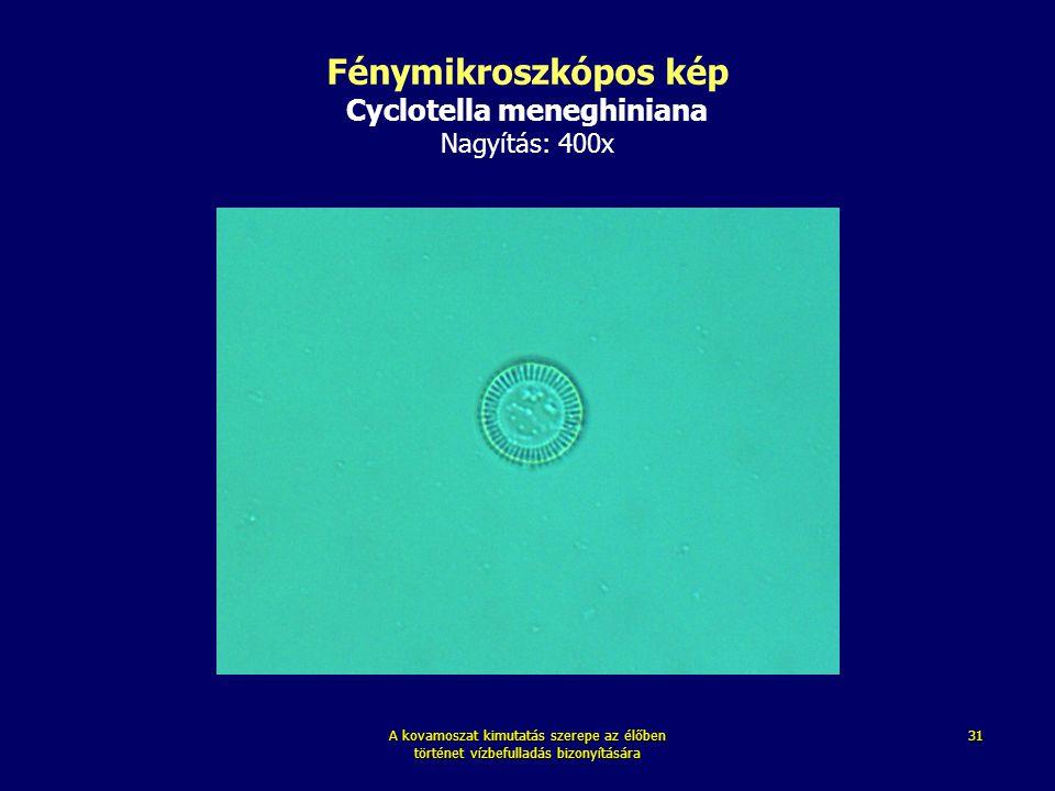 A kovamoszat kimutatás szerepe az élőben történet vízbefulladás bizonyítására 31 Fénymikroszkópos kép Cyclotella meneghiniana Nagyítás: 400x