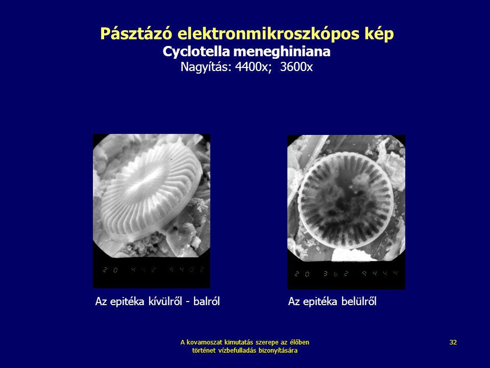 A kovamoszat kimutatás szerepe az élőben történet vízbefulladás bizonyítására 32 Pásztázó elektronmikroszkópos kép Cyclotella meneghiniana Nagyítás: 4