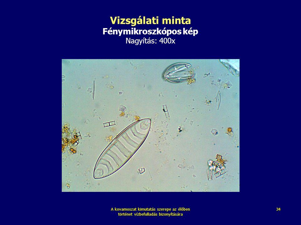 A kovamoszat kimutatás szerepe az élőben történet vízbefulladás bizonyítására 34 Vizsgálati minta Fénymikroszkópos kép Nagyítás: 400x