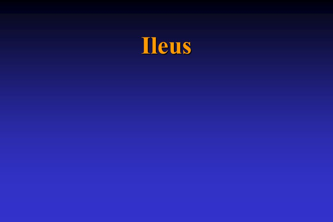 Ileus ( είλεός) = (fojtogatni) Ileus – történelmi áttekintés 1.