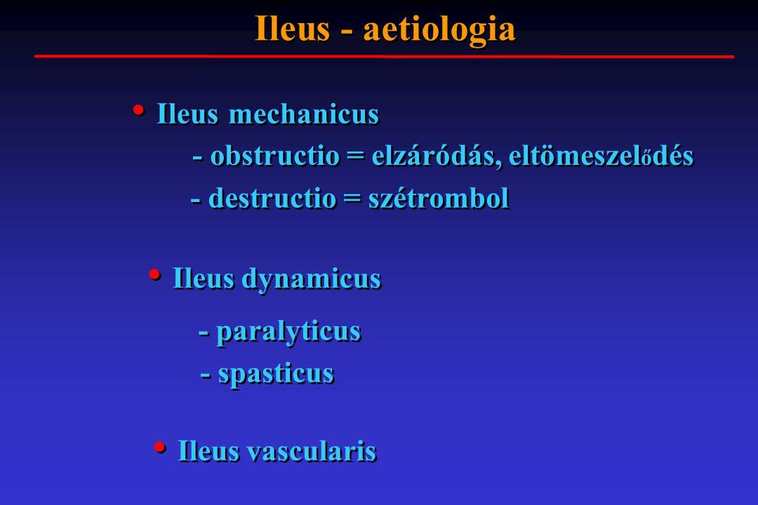 Ileus - aetiologia Ileus mechanicus Ileus dynamicus Ileus vascularis - obstructio = elzáródás, eltömeszel ő dés - destructio = szétrombol - paralyticu