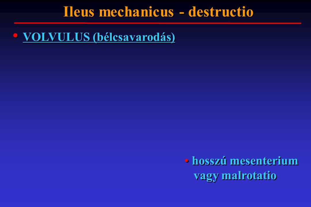 VOLVULUS (bélcsavarodás) Ileus mechanicus - destructio hosszú mesenterium vagy malrotatio