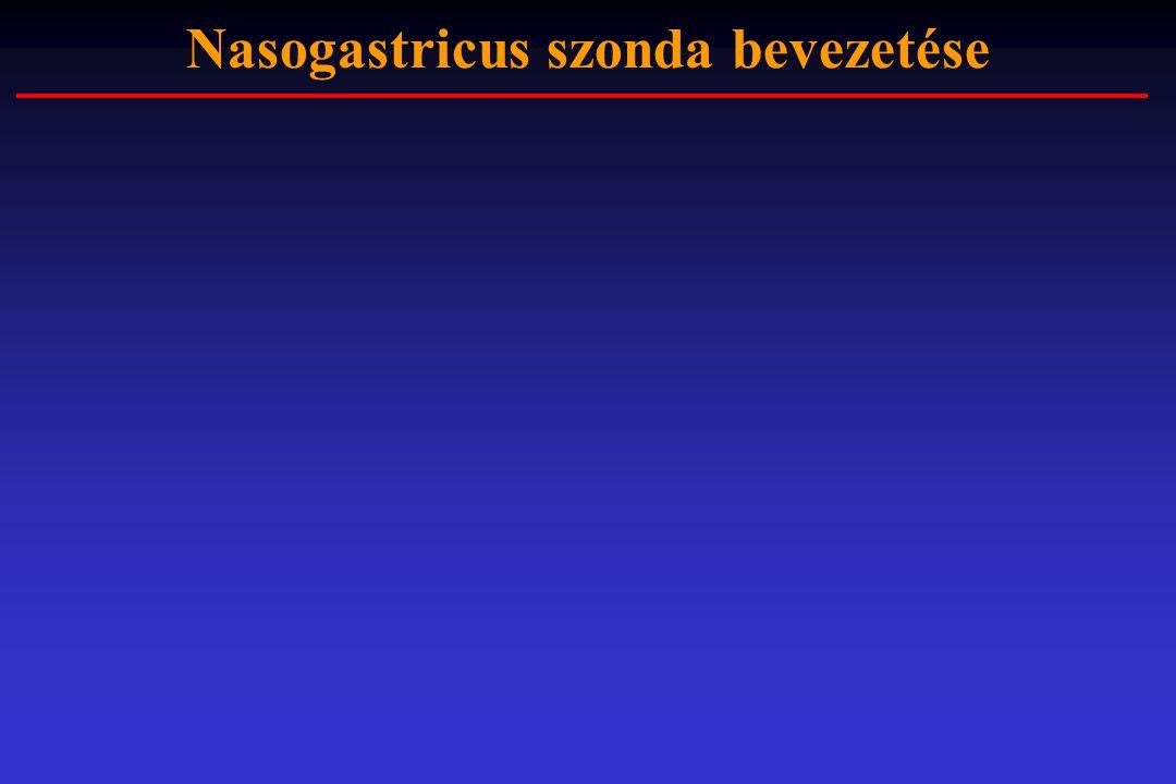 Nasogastricus szonda bevezetése