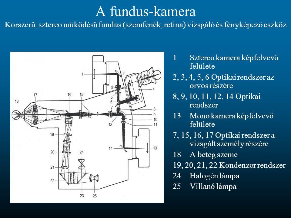 A fundus-kamera Korszerű, sztereo működésű fundus (szemfenék, retina) vizsgáló és fényképező eszköz 1Sztereo kamera képfelvevő felülete 2, 3, 4, 5, 6