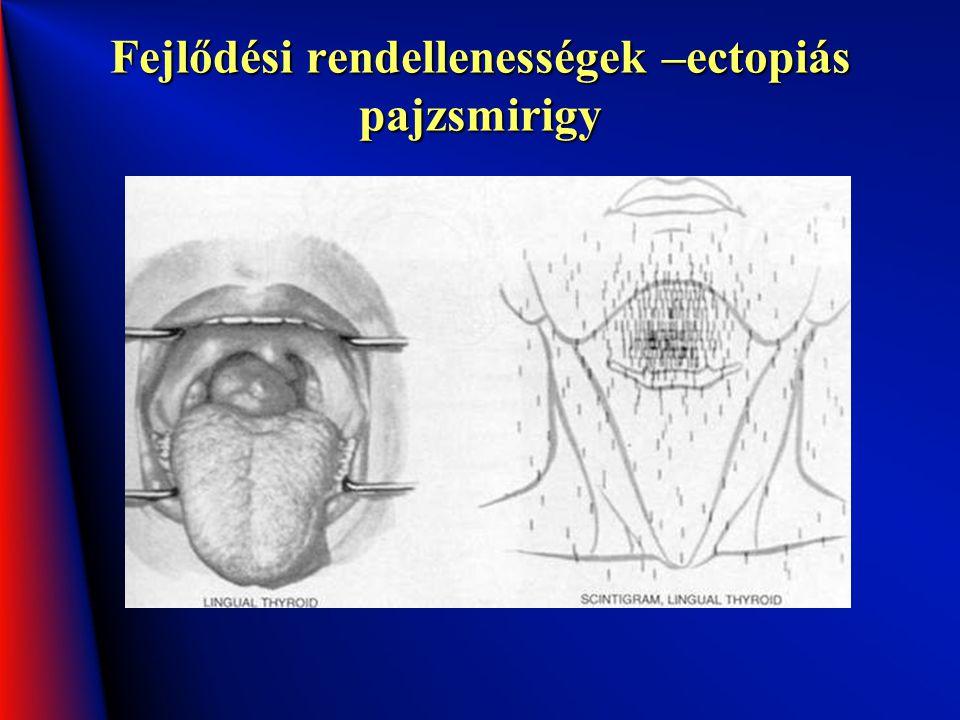 Fejlődési rendellenességek –ectopiás pajzsmirigy