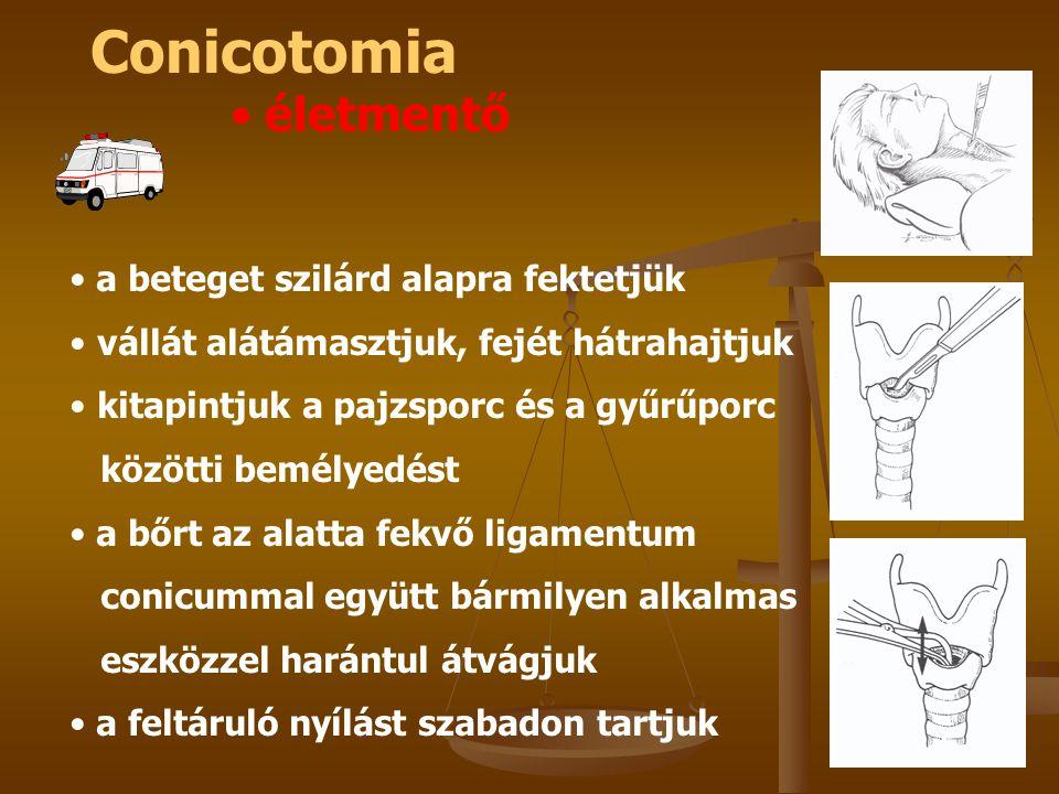Conicotomia életmentő a beteget szilárd alapra fektetjük vállát alátámasztjuk, fejét hátrahajtjuk kitapintjuk a pajzsporc és a gyűrűporc közötti bemél