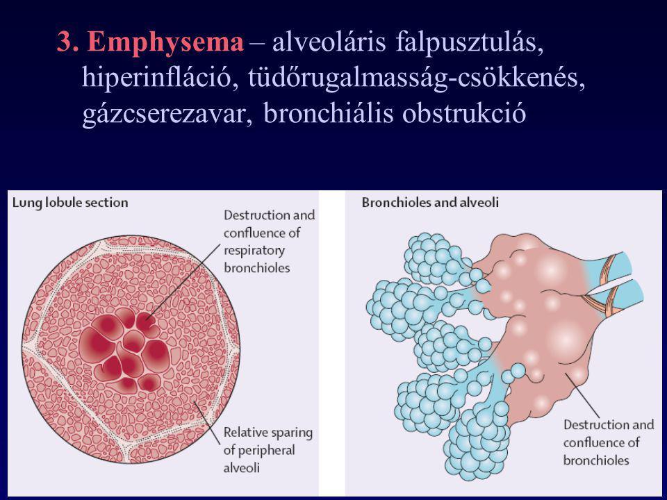 3. Emphysema – alveoláris falpusztulás, hiperinfláció, tüdőrugalmasság-csökkenés, gázcserezavar, bronchiális obstrukció