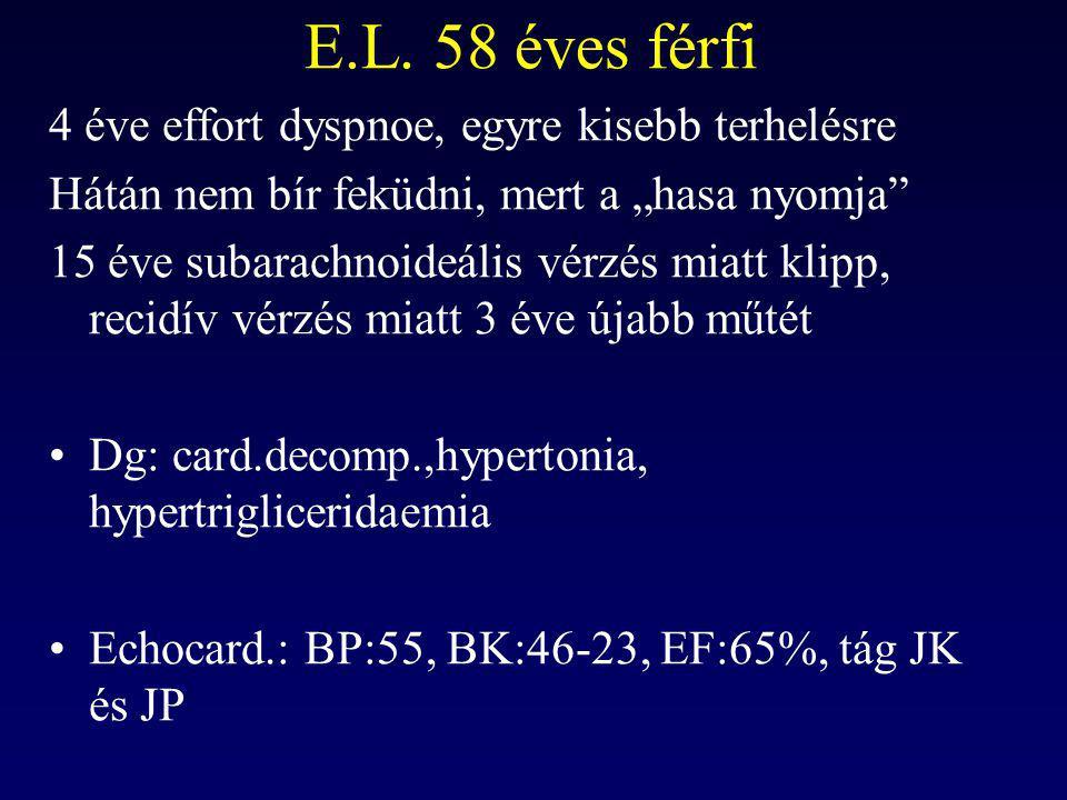 """E.L. 58 éves férfi 4 éve effort dyspnoe, egyre kisebb terhelésre Hátán nem bír feküdni, mert a """"hasa nyomja"""" 15 éve subarachnoideális vérzés miatt kli"""