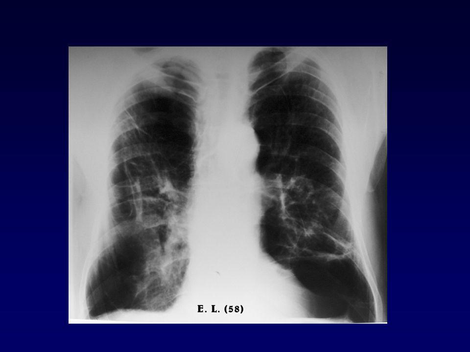 Jellemző fenotípusok bronchitisz emfizéma dinamikus térfogatok csökkent csökkent ( FEV 1, FEV 1 /FVC) statikus térfogatok TLC normális vagy enyhén jelentősen emelkedett emelkedett RV mérsékelten emelkedett jelentősen emelkedett diffuziós kapacitás normális vagy enyhén alacsony csökkent Vérgáz hypoxaemia, hypercapnia hypoxaemia későn Terhelés hypoxaemia nem változik, javul hypoxaemia vagy romlik romlik Cor pulmonale gyakran ritkán