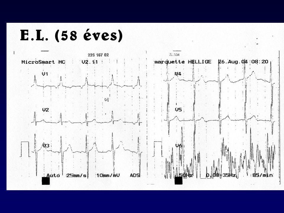 A kilégzési áramláscsökkenés okai Reverzibilis –Gyulladásos sejtek, nyák, exsudatum felszaporodása –Simaizom kontrakció a légutakban –Dinamikus hyperinflatio (terhelés)