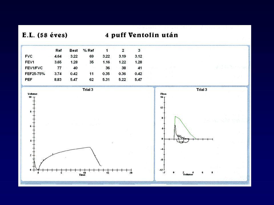 Patológia és gázcsere kapcsolata stabil COPD-ben Stockley, Rennard, Rabe, Celli, 2007