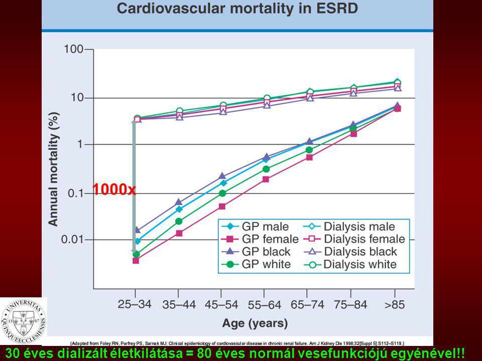 Stroke – mortalitási adatok CKD- ben -Az összes dializált beteg stroke halálozása: USA: 5-10% -a stroke-os dializált betegek életkilátásai Japánban még rosszabbak (Okinawa dialysis study, 2000) 47 %1 hónap múlva halott 57 %6 hónap múlva halott 65 %1 év múlva halott