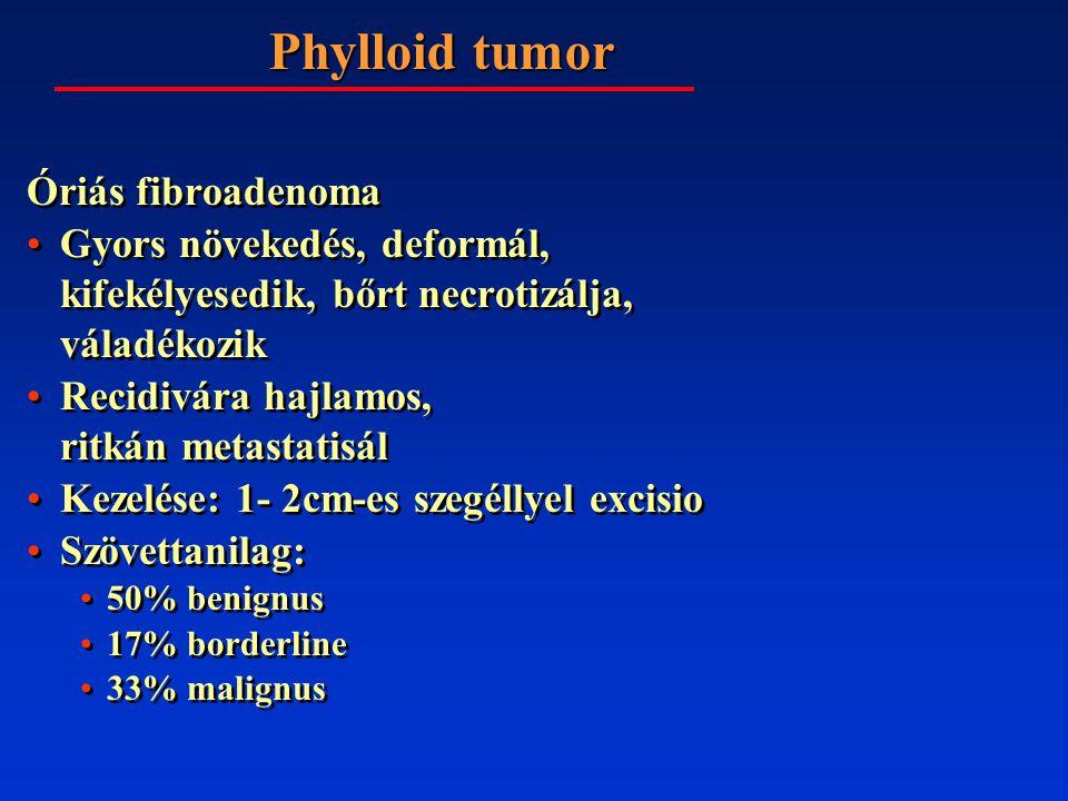 Phylloid tumor Óriás fibroadenoma Gyors növekedés, deformál, kifekélyesedik, bőrt necrotizálja, váladékozik Recidivára hajlamos, ritkán metastatisál Kezelése: 1- 2cm-es szegéllyel excisio Szövettanilag: 50% benignus 17% borderline 33% malignus Óriás fibroadenoma Gyors növekedés, deformál, kifekélyesedik, bőrt necrotizálja, váladékozik Recidivára hajlamos, ritkán metastatisál Kezelése: 1- 2cm-es szegéllyel excisio Szövettanilag: 50% benignus 17% borderline 33% malignus