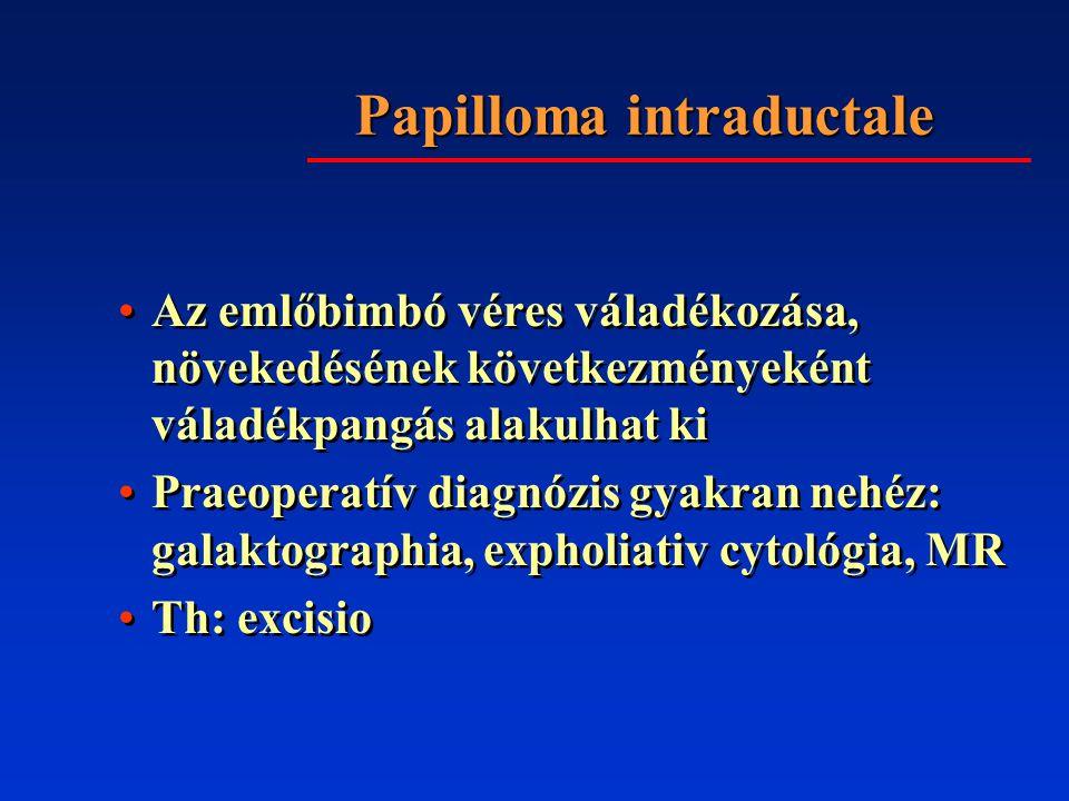 Papilloma intraductale Az emlőbimbó véres váladékozása, növekedésének következményeként váladékpangás alakulhat ki Praeoperatív diagnózis gyakran nehéz: galaktographia, expholiativ cytológia, MR Th: excisio Az emlőbimbó véres váladékozása, növekedésének következményeként váladékpangás alakulhat ki Praeoperatív diagnózis gyakran nehéz: galaktographia, expholiativ cytológia, MR Th: excisio