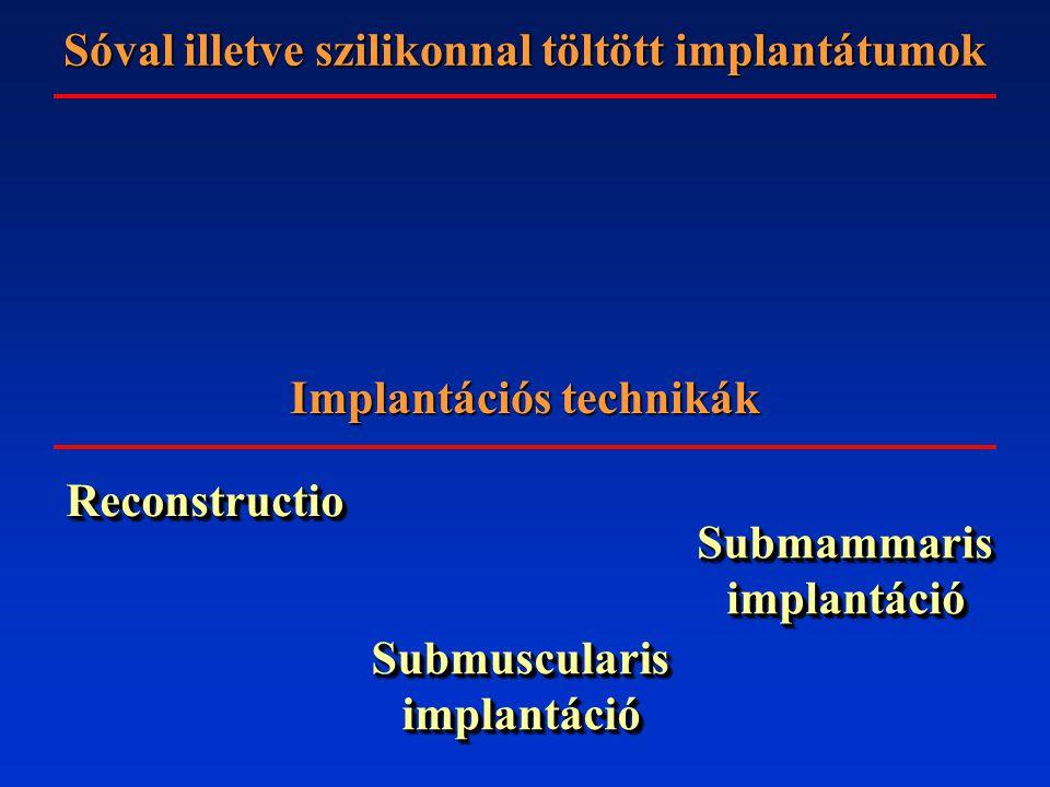 Implantációs technikák ReconstructioReconstructio Submammaris implantáció Submuscularis implantáció Sóval illetve szilikonnal töltött implantátumok