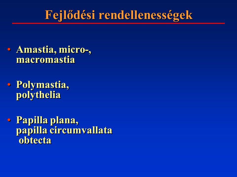 Amastia Poland sy.(1841) + syndactylia + borda, clavicula, kar fejl.