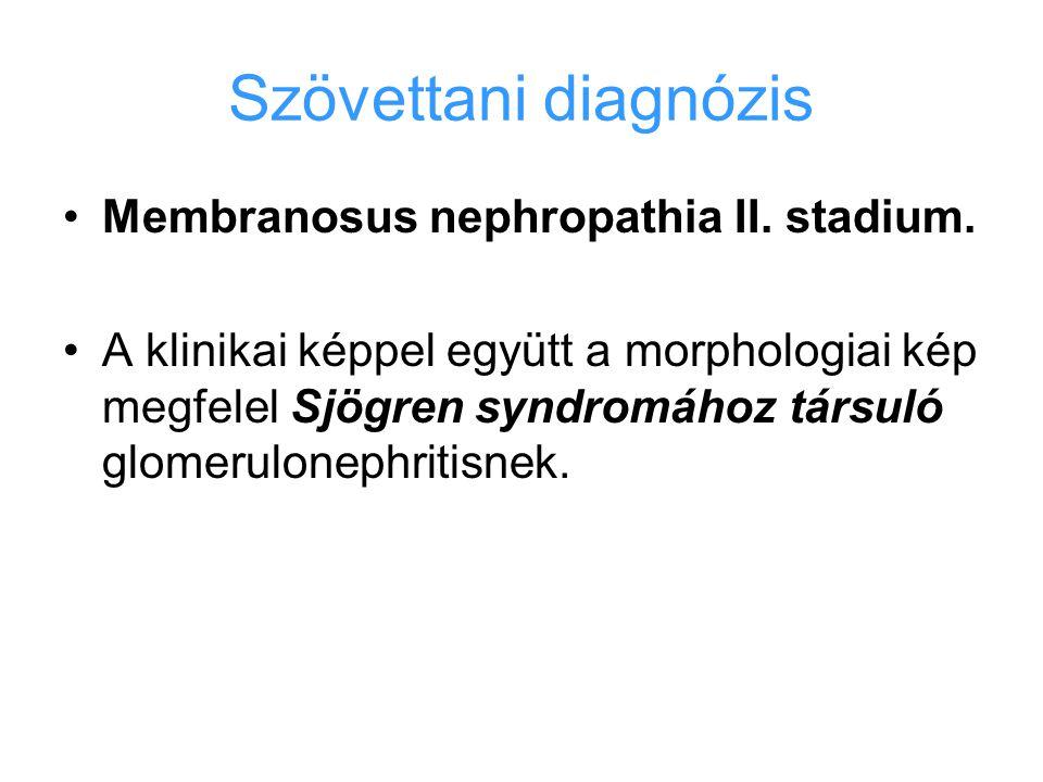 Szövettani diagnózis Membranosus nephropathia II. stadium. A klinikai képpel együtt a morphologiai kép megfelel Sjögren syndromához társuló glomerulon