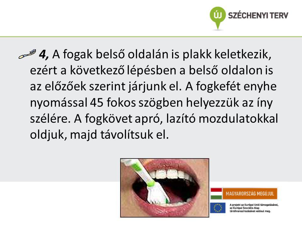 4, A fogak belső oldalán is plakk keletkezik, ezért a következő lépésben a belső oldalon is az előzőek szerint járjunk el. A fogkefét enyhe nyomással
