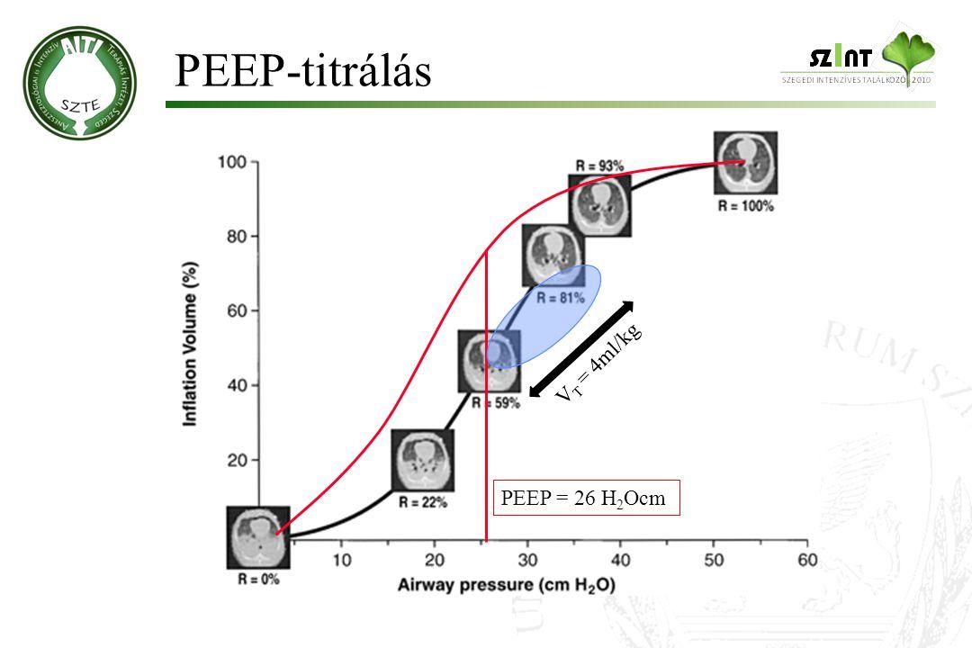 PEEP-titrálás V T = 4ml/kg PEEP = 26 H 2 Ocm