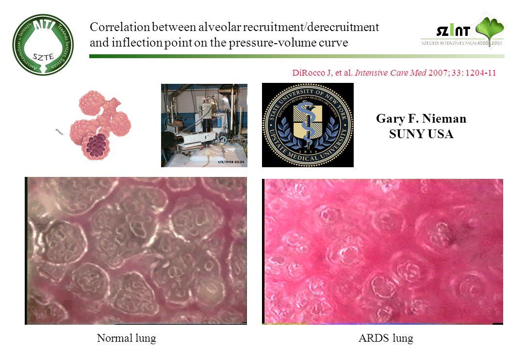 Gary F.Nieman SUNY USA Normal lungARDS lung DiRocco J, et al.