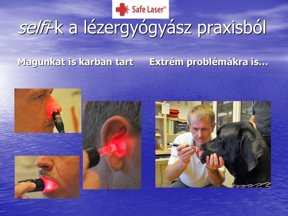 selfi-k a lézergyógyász praxisból Magunkat is karban tart Extrém problémákra is…