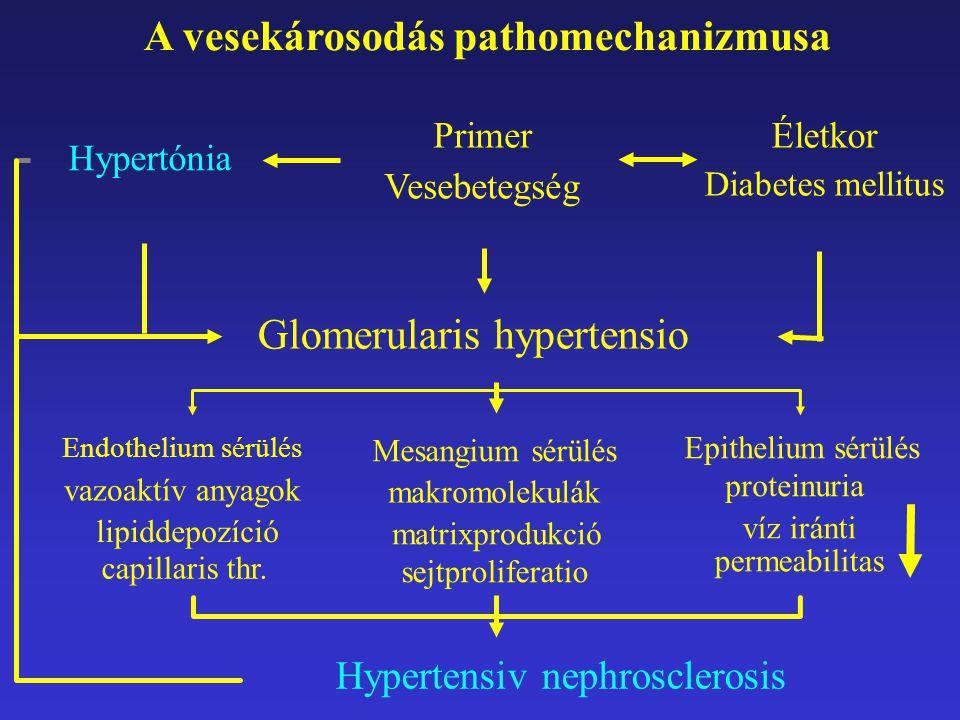 Endothelium sérülés vazoaktív anyagok lipiddepozíció capillaris thr. Primer Vesebetegség Hypertensiv nephrosclerosis A vesekárosodás pathomechanizmusa
