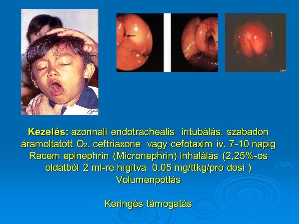 Kezelés: azonnali endotrachealis intubálás, szabadon áramoltatott O 2, ceftriaxone vagy cefotaxim iv. 7-10 napig Racem epinephrin (Micronephrin) inhal