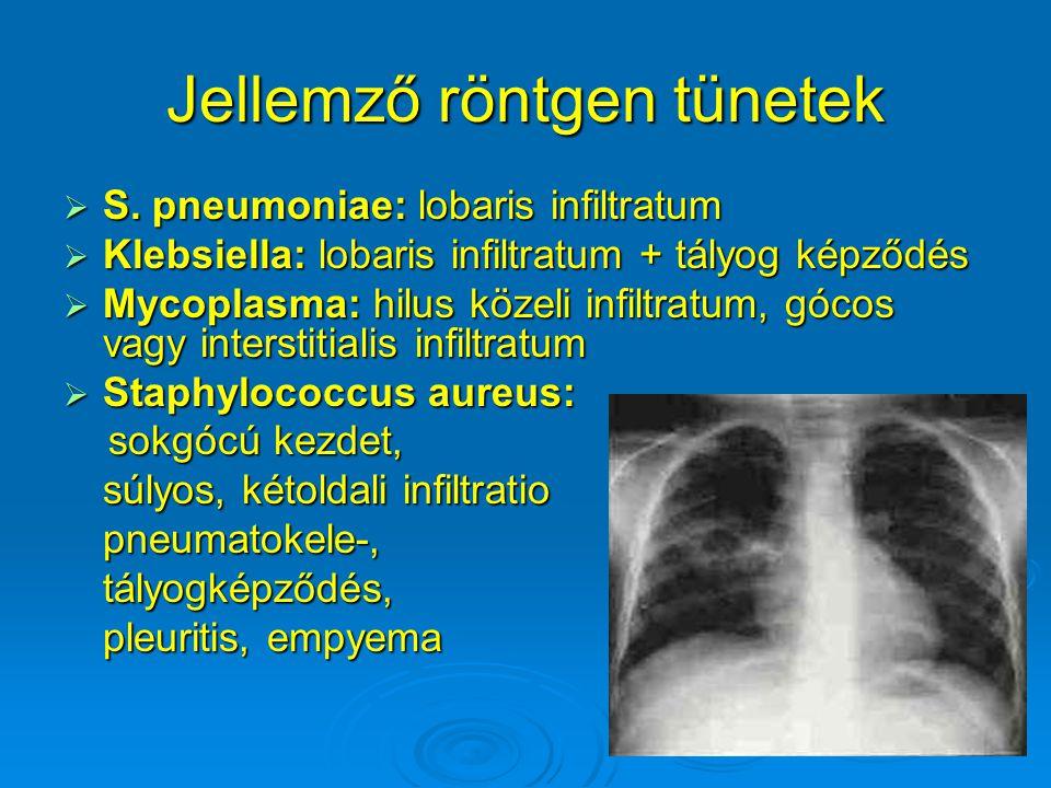 Jellemző röntgen tünetek  S. pneumoniae: lobaris infiltratum  Klebsiella: lobaris infiltratum + tályog képződés  Mycoplasma: hilus közeli infiltrat