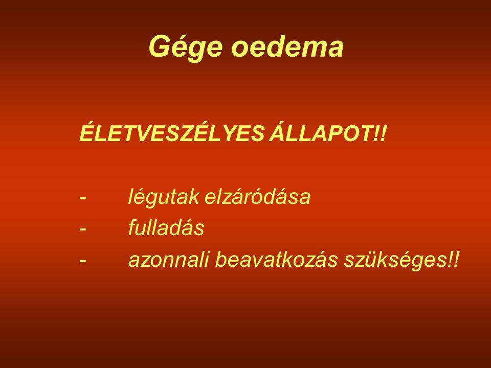 Gége oedema ÉLETVESZÉLYES ÁLLAPOT!! -légutak elzáródása -fulladás -azonnali beavatkozás szükséges!!