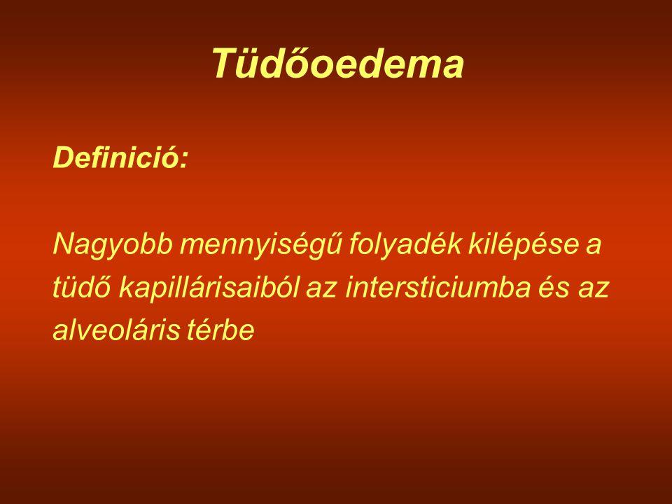 Tüdőoedema Definició: Nagyobb mennyiségű folyadék kilépése a tüdő kapillárisaiból az intersticiumba és az alveoláris térbe