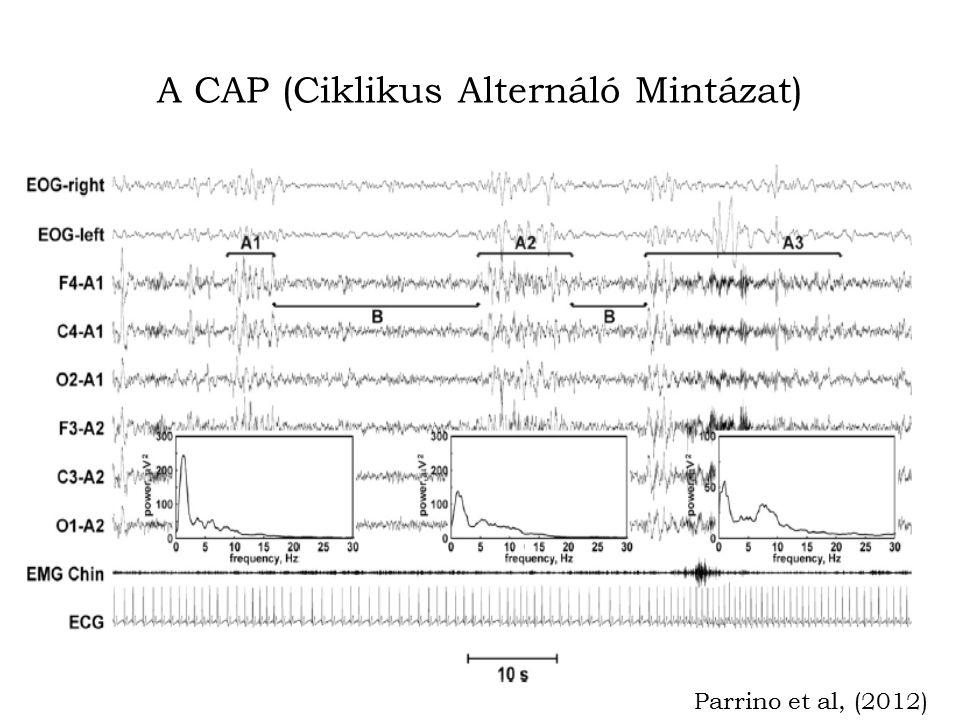 A CAP (Ciklikus Alternáló Mintázat) Parrino et al, (2012)