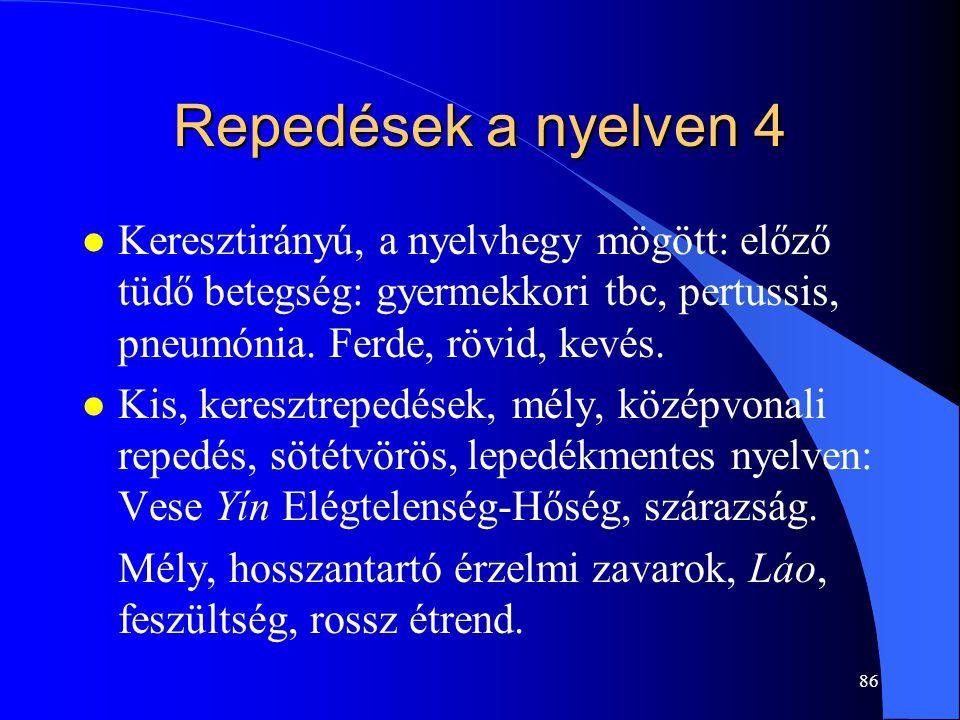 86 Repedések a nyelven 4 l Keresztirányú, a nyelvhegy mögött: előző tüdő betegség: gyermekkori tbc, pertussis, pneumónia. Ferde, rövid, kevés. l Kis,