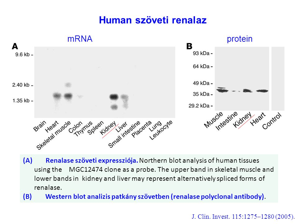 (A) Renalase szöveti expressziója. Northern blot analysis of human tissues using the MGC12474 clone as a probe. The upper band in skeletal muscle and