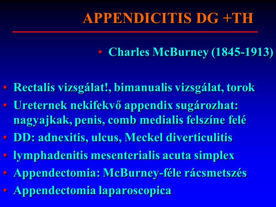 APPENDICITIS DG +TH Charles McBurney (1845-1913) Rectalis vizsgálat!, bimanualis vizsgálat, torok Ureternek nekifekvő appendix sugározhat: nagyajkak,