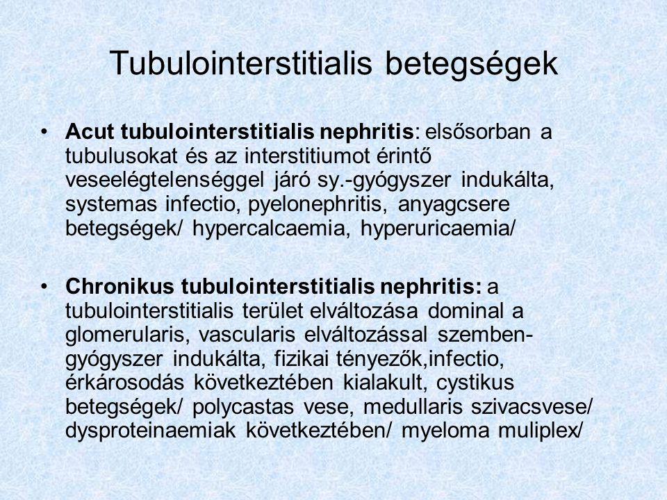 Tubulointerstitialis betegségek Acut tubulointerstitialis nephritis: elsősorban a tubulusokat és az interstitiumot érintő veseelégtelenséggel járó sy.
